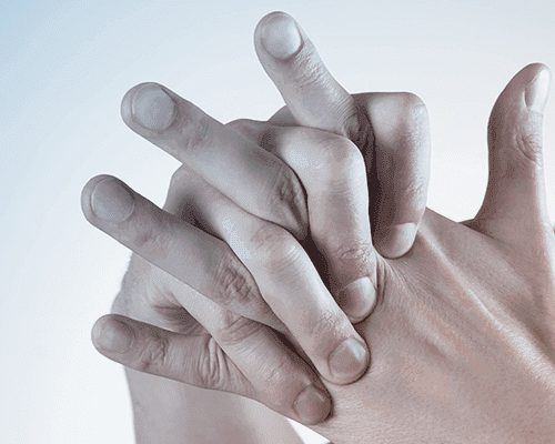 Romatoid Artrit (İltihaplı Romatizma) Tedavisi – Tüm Soru Cevaplar