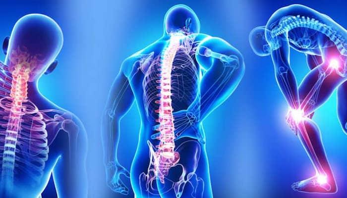 Fibromiyalji, Yumuşak doku romatizması nedir ?