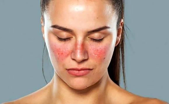 Sistemik Lupus Erİtematozus (SLE)