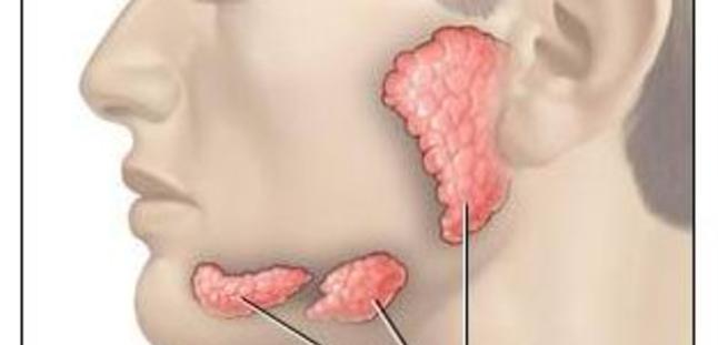 Sjögren Sendromu nedir ?